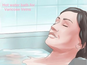 Varicose Veins Treatment with Hot Bath
