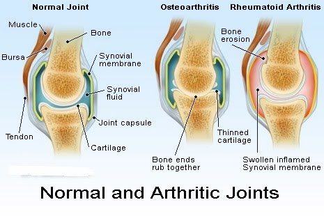 Arthritic Joints vs Normal Joints