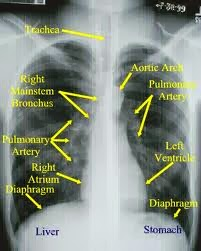 Asthma Diagnosis with Chest X-Ray