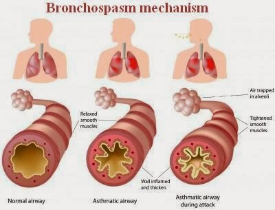 Asthma Pathophysioloy and Bronchospasm Mechanism