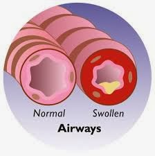 Asthma Symptoms and Swollen Airways