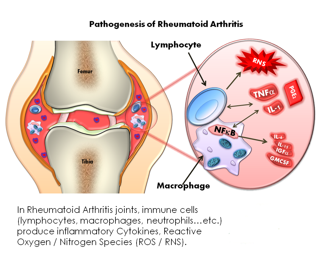 picture Medications Used to Treat Arthritis Symptoms