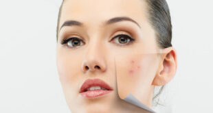 Acne Treatment with simple home remedies for women