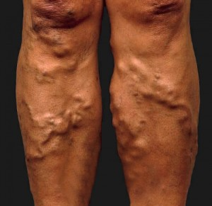varicose veins home remedies
