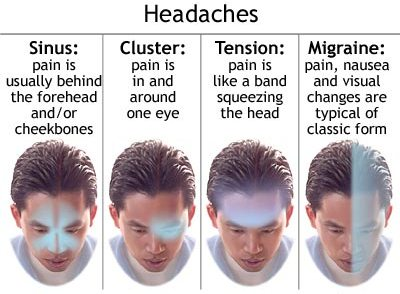 Headaches Types: Migraine, Tension, Cluster, Sinus