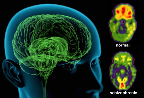 history and causes of schizophrenia Scientists have successfully identified genetic factors associated with schizophrenia these findings could represent a decisive step towards understanding the causes of this severe mental disorder as well as developing new potential treatments.