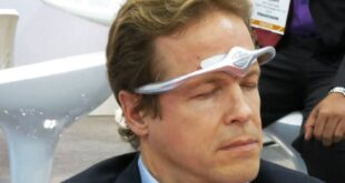 Cefaly Migraine Treatment Headache Band Review Price