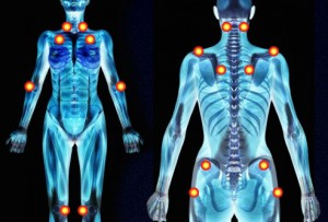 Fibromyalgia Symptoms, Causes, Treatment, Tests and Diagnosis