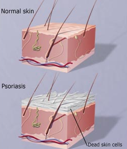 Psoriasis Treatment, Causes, Sign and Symptoms
