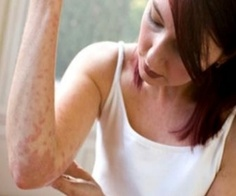 Urticaria(hives) Causes, Treatment, Sign and Symptoms