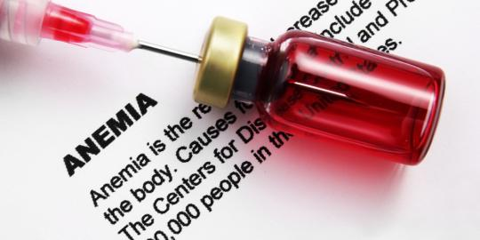 Anemia Types, Treatment, Causes , Sign and Symptoms