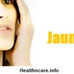 Obstructive Jaundice Symptoms, Causes and Treatment