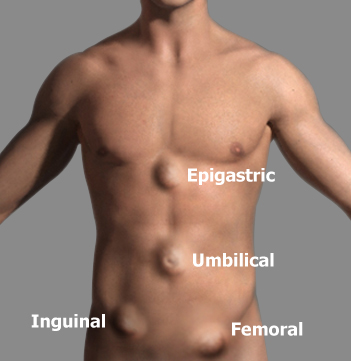 Major Sign and Symptoms of Hernia in Men