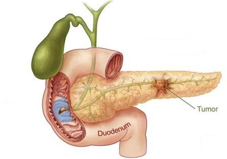 Major Sign and Symptoms of Bile Duct cancer