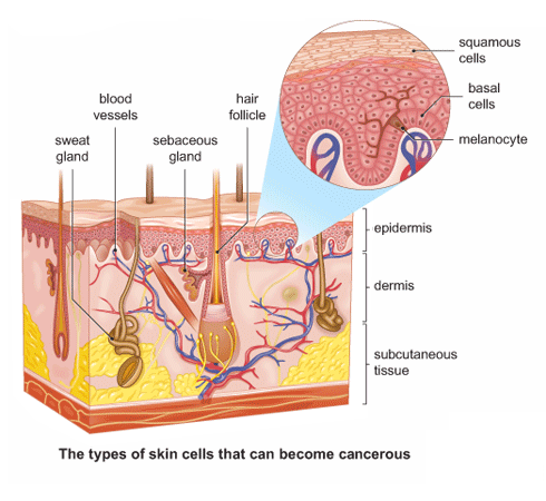 Skin Cancer Sign and Symptoms