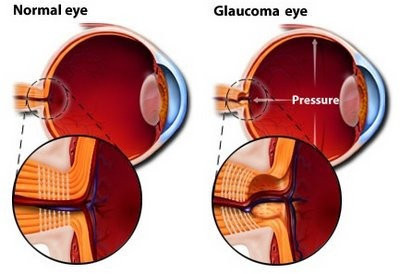 Major sign and symptoms of glaucoma