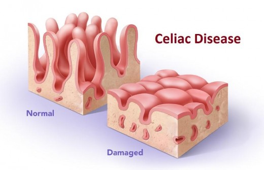 Signs Celiac Disease Symptoms in Children