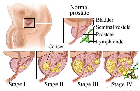 Prostate cancer survival rates and life expectancy in Canada