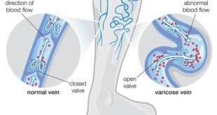 Varicose Veins Treatment Natural Home Remedies