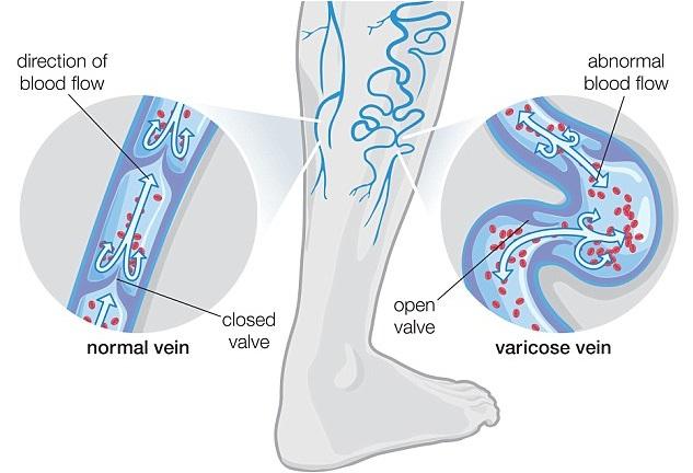 Varicose Veins Treatment Natural Home Remedies