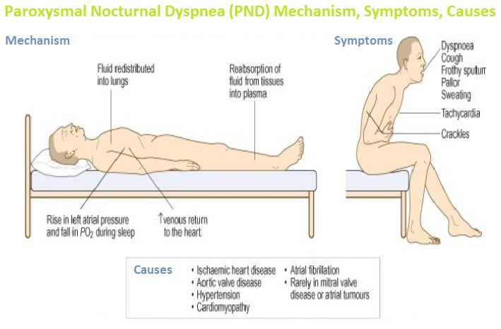Paroxysmal Nocturnal Dyspnea (PND) Mechanism, Symptoms, Causes