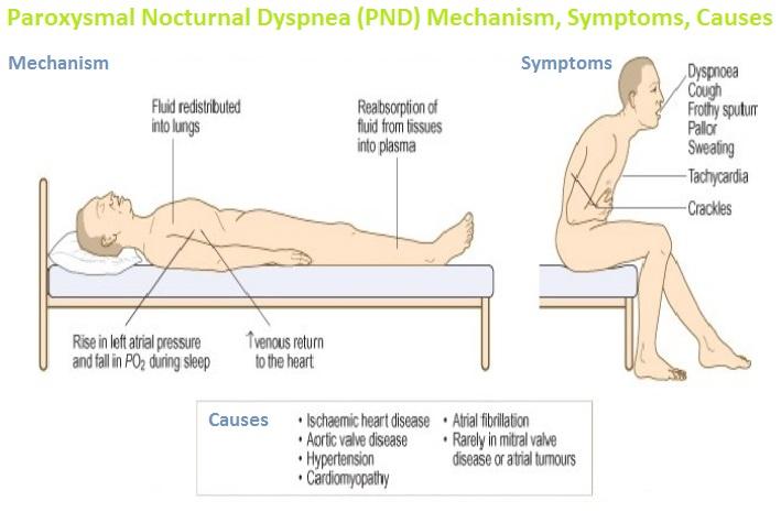 Paroxysmal Nocturnal Dyspnea (PND) Mechanism, Symptoms, Causes