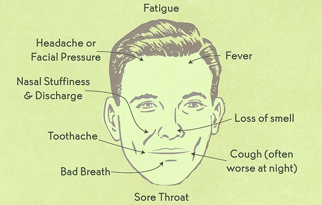 Are Sinus Infections Contagious? Causes and Prevention