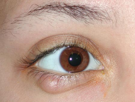 HOW TO GET RID OF CHALAZION