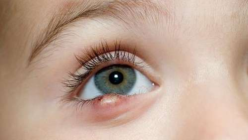 How to Get Rid of Stye on Upper/Bottom Eyelid