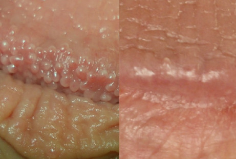 pearly penile papules (ppp) removal of bumps/pimples on penis, Skeleton