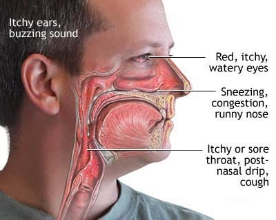 Post-nasal Drip Remedies at home naturally