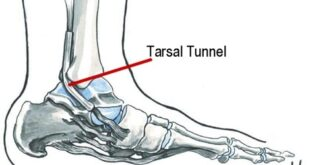 Tarsal Tunnel Syndrome Symptoms, MRI Test, Surgery