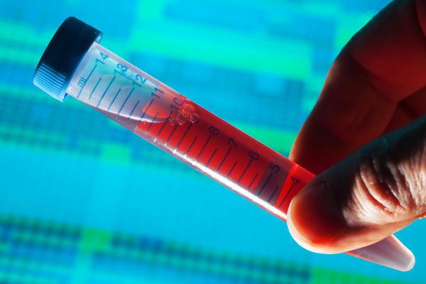 Hemosiderosis vs Hemochromatosis - Symptoms, Treatment, Causes