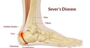 Sever's Disease Symptoms, Causes.