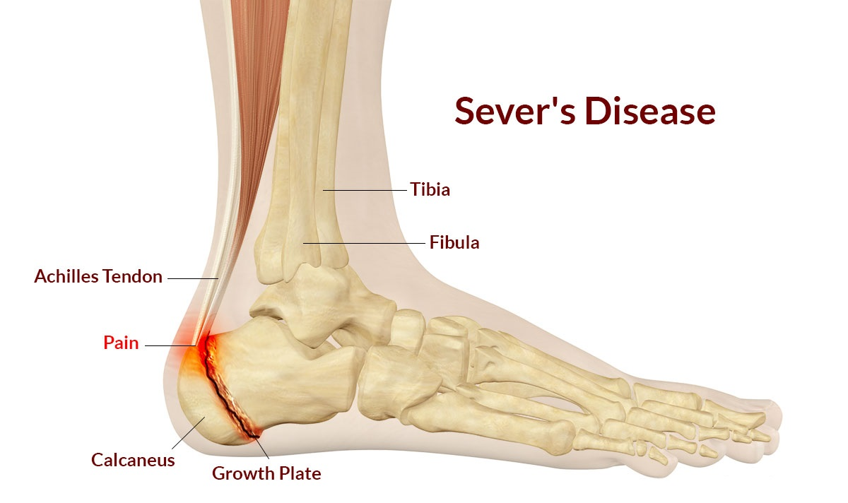 Sever's Disease Symptoms, Causes.
