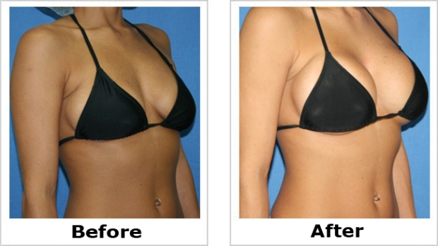 After breast augmentation video