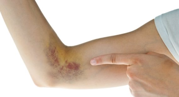 How to Give Yourself a Bruise Fast, Easily, Painless