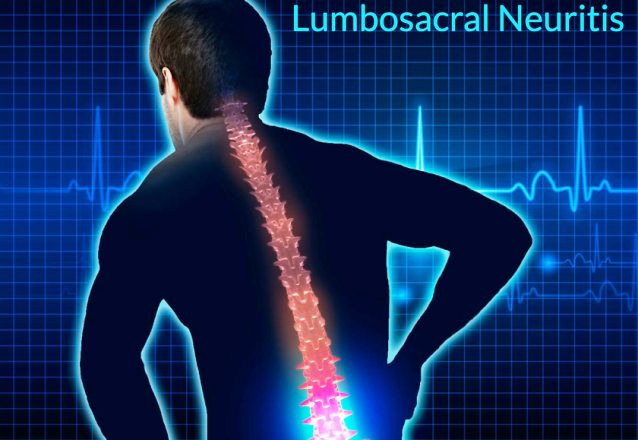 7244 Lumbosacral Neuritis Definition Symptoms Types Causes Treatment