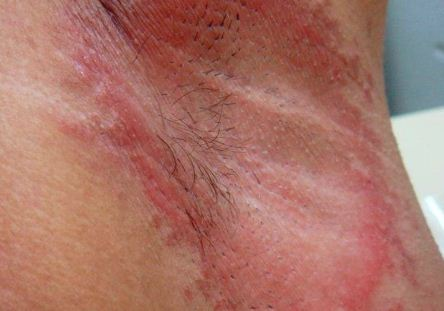 Underarm rash due to deodorant
