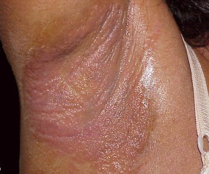 Underarm rash due to due to allergic reaction or contact dermatitis