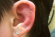 Infected Cartilage Piercing Symptoms, Treatment
