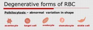 Poikilocytosis Definition, Causes, Symptoms, Treatment
