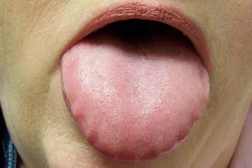 Scalloped Tongue Pictures