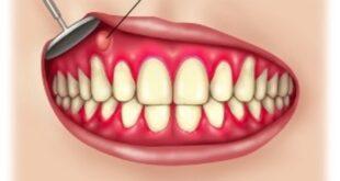 Gum Boils (Abscess) Pictures, Symptoms, Causes, Treatment