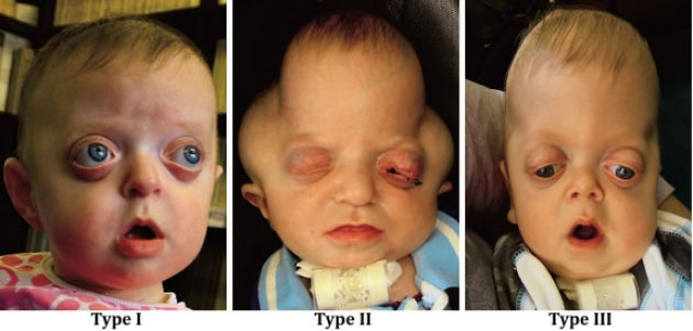 Pfeiffer Syndrome Pictures, Causes, Symptoms, Treatment