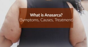 Anasarca - Definition, Pictures, Causes, Treatment