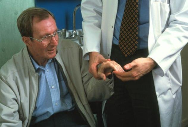 Bradykinesia - Definition, Causes, Treatment