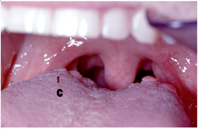 Circumvallate Papillae Function, Enlarged Causes, Treatment