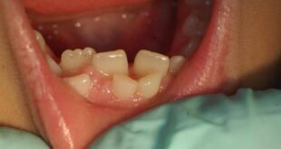 Hyperdontia (Extra Teeth) Causes, Treatment and Removal