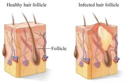 Infected ingrown hair on scalp- Folliculitis on scalp